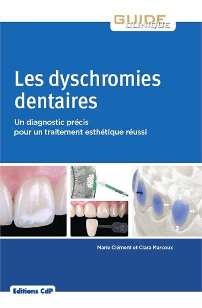 les-dyschromies-dentaires.html