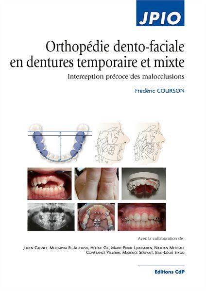 Orthopédie dento-faciale en dentures temporaire et mixte