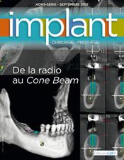 De la radio au Cone Beam - Hors-Série 2017 Revue Implant