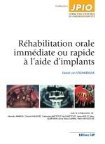 Réhabilitation orale immédiate ou rapide à l'aide d'implants