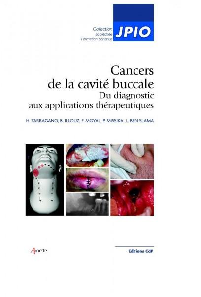 Cancers de la cavité buccale