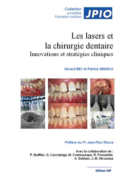 Les lasers et la chirurgie dentaire